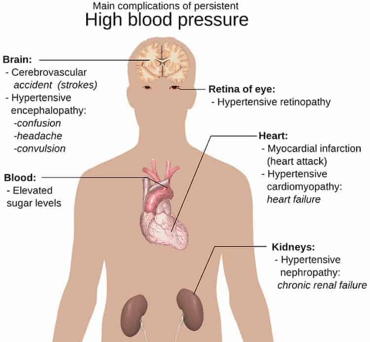 jengibre para la mejora de la hipertension